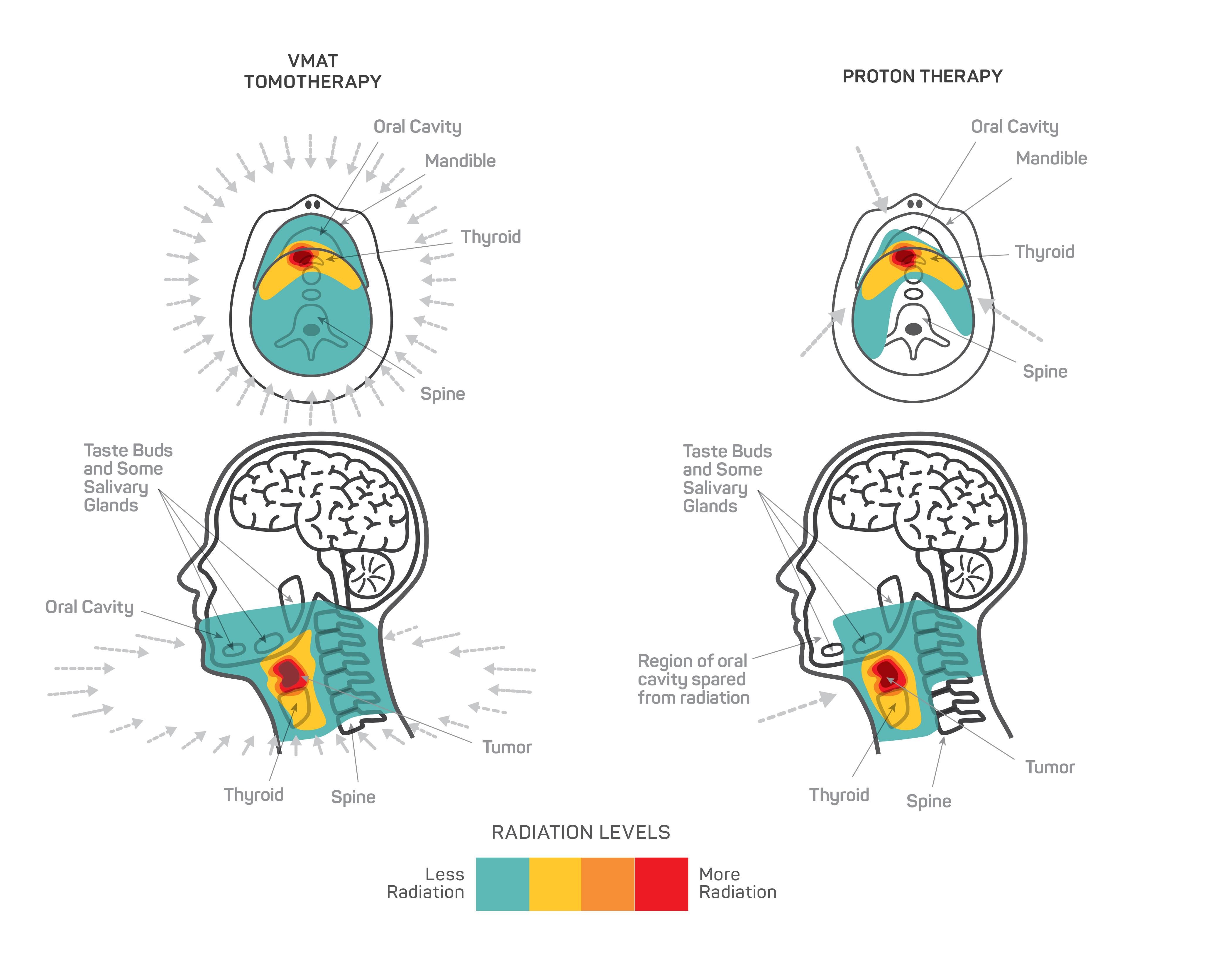 Radioterapia cáncer cabeza cuello