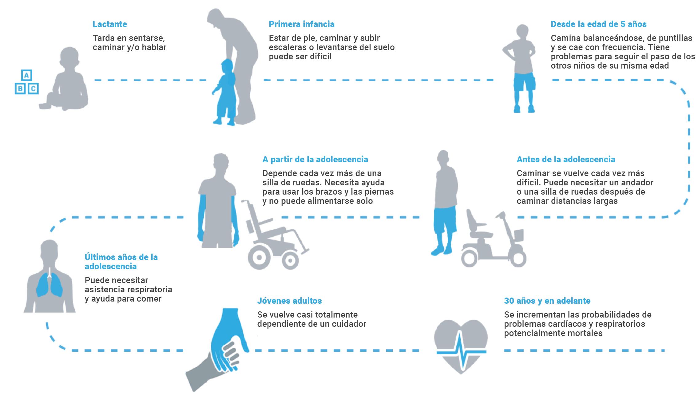 Distrofia muscular Duchenne síntomas