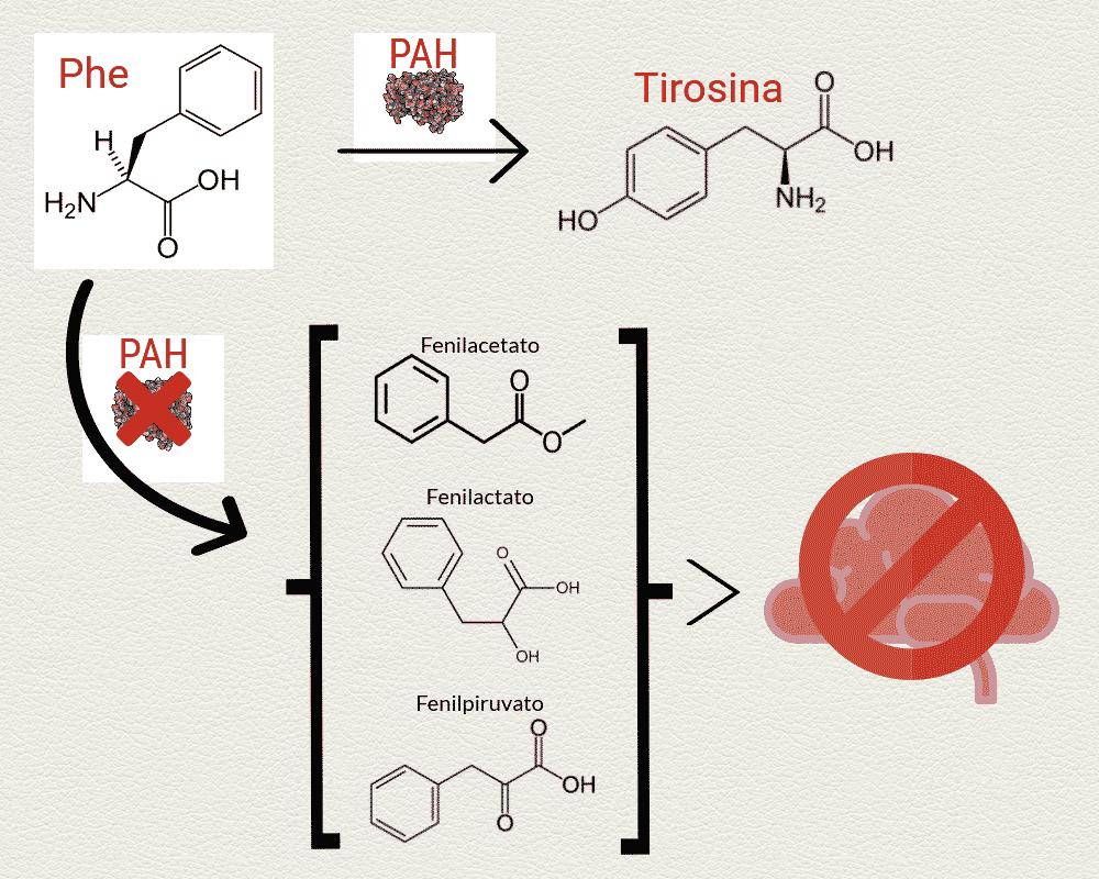 Qué es fenilcetonuria