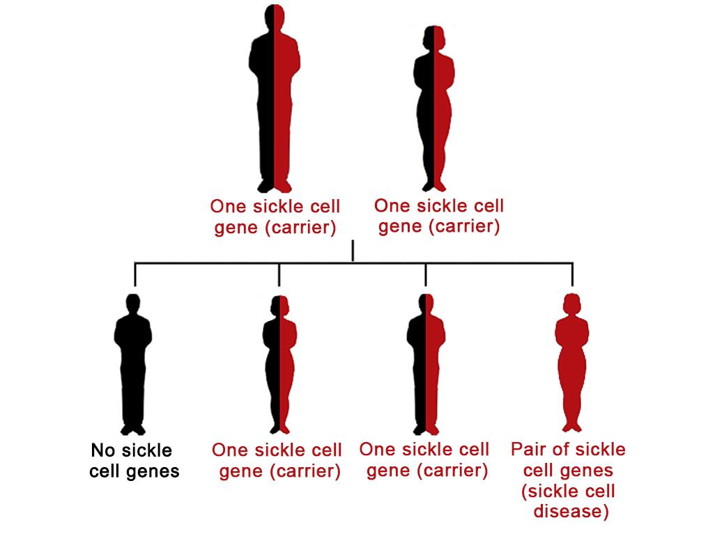 Causas anemia falciforme