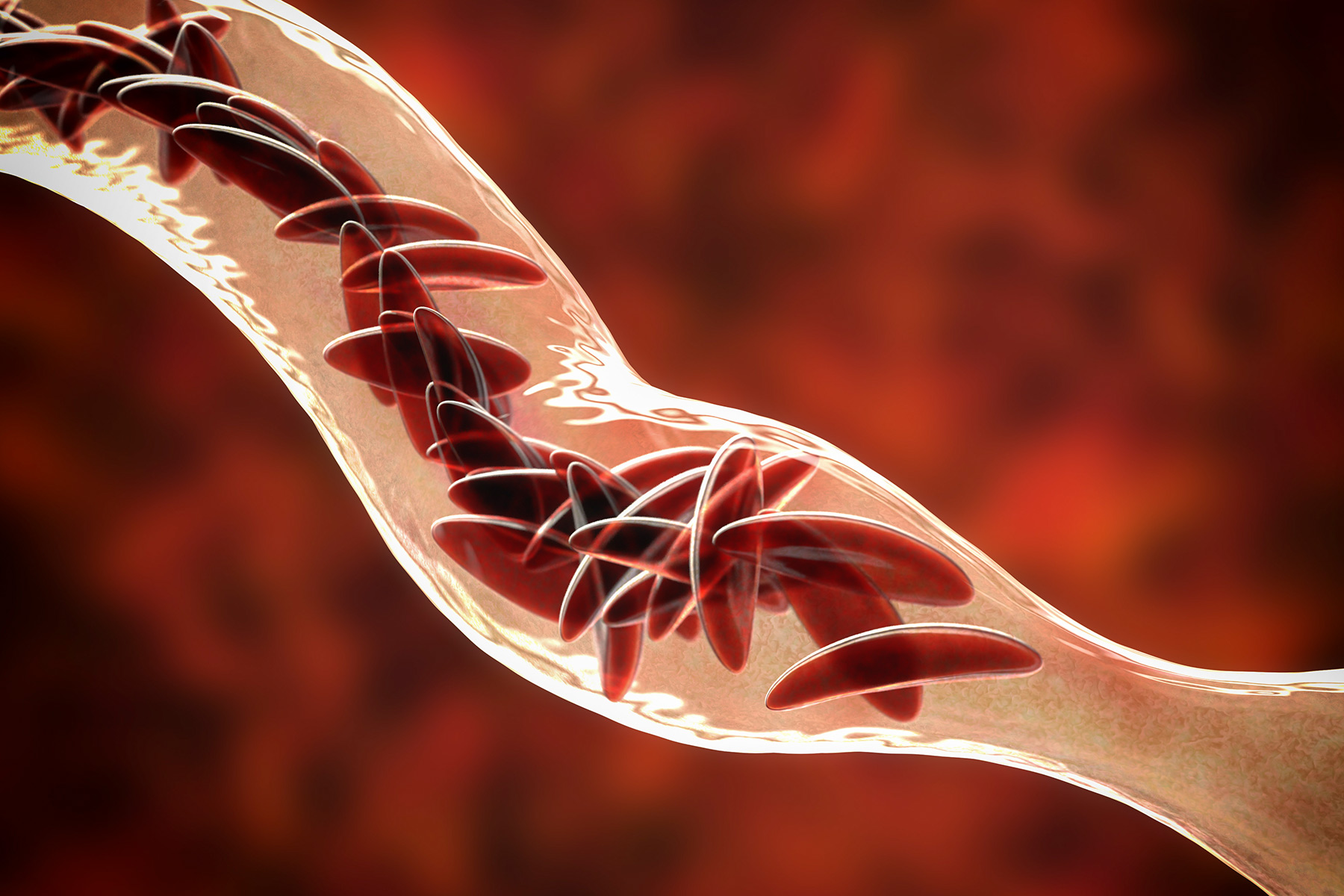 Síntomas anemia falciforme