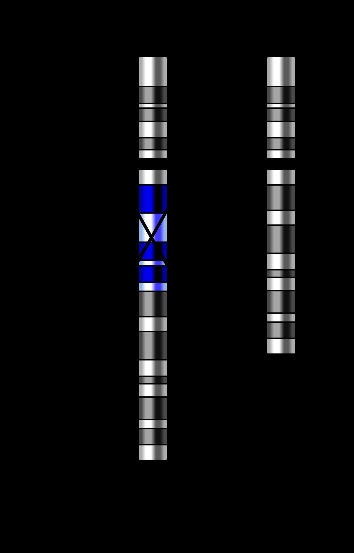 Deleciones cromosómicas