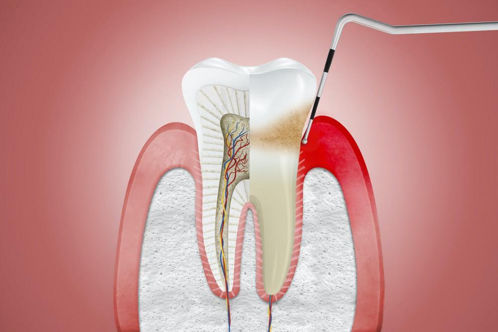 Diferencias gingivitis periodontitis