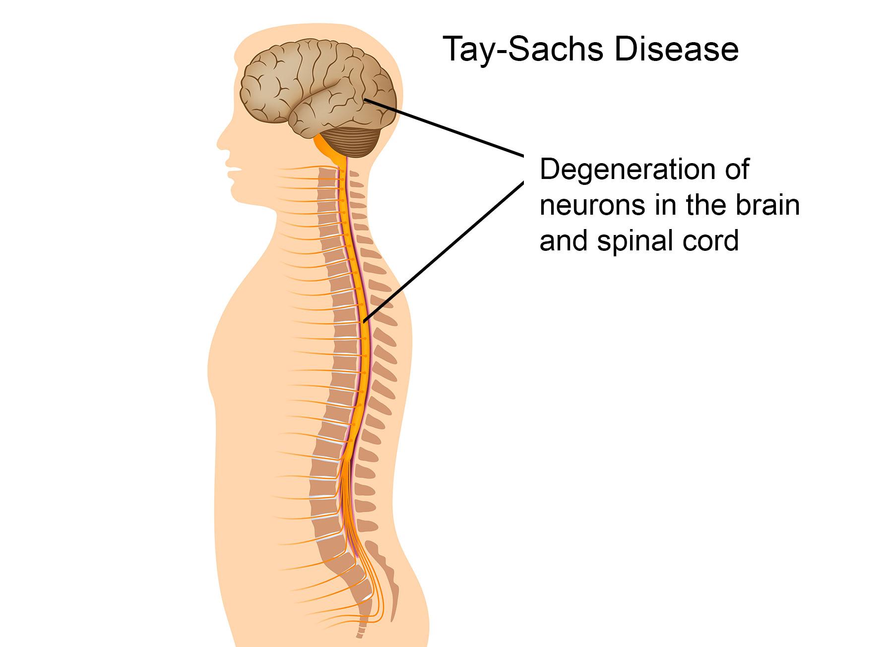 Qué es enfermedad Tay-Sachs