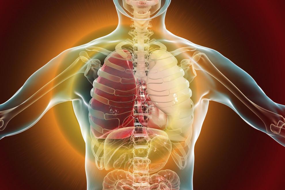 Diferencias neumonía bronquitis