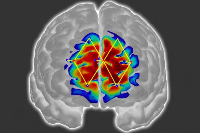 Dolor cerebro