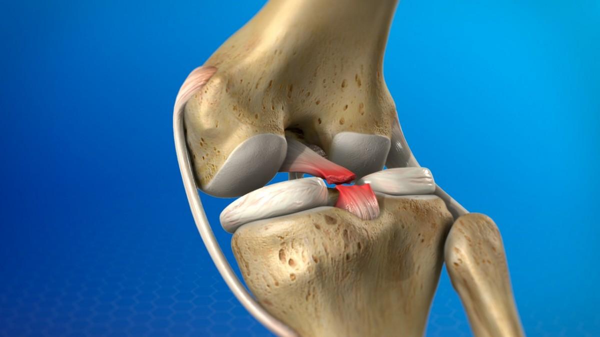 Lesión ligamento
