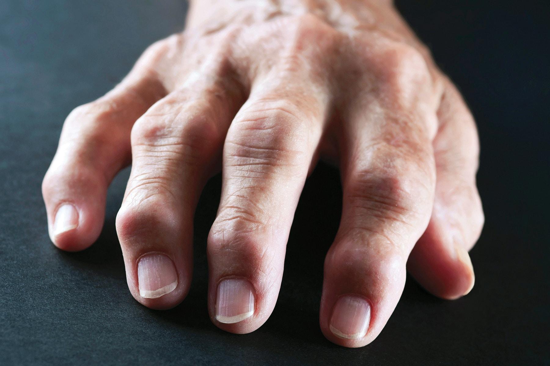 Qué es artritis reumatoide
