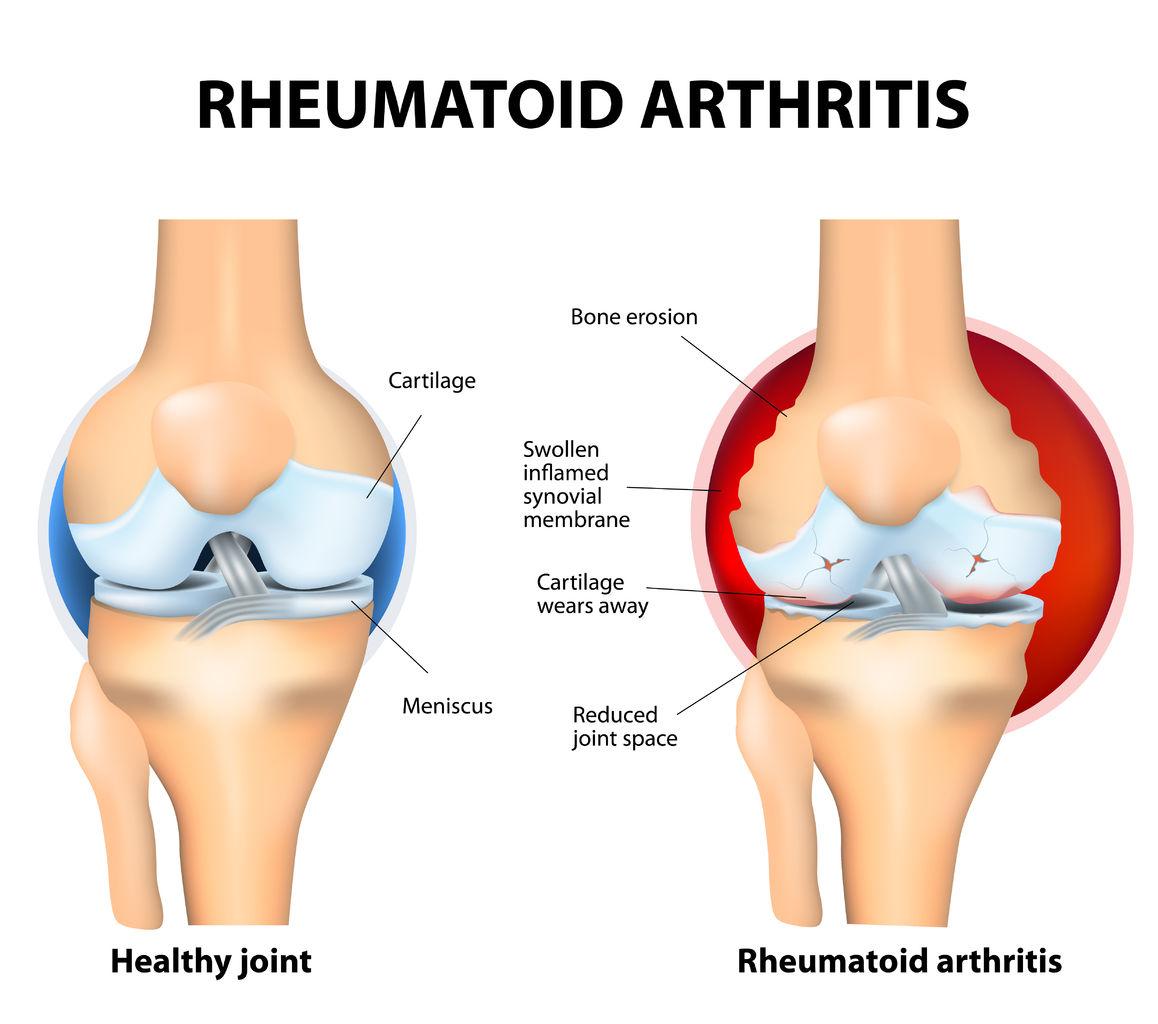 Causas artritis