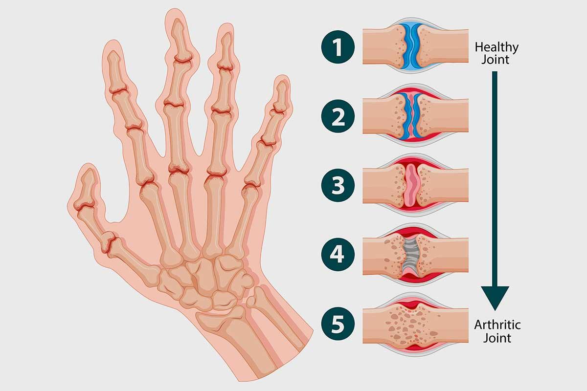 Síntomas artritis