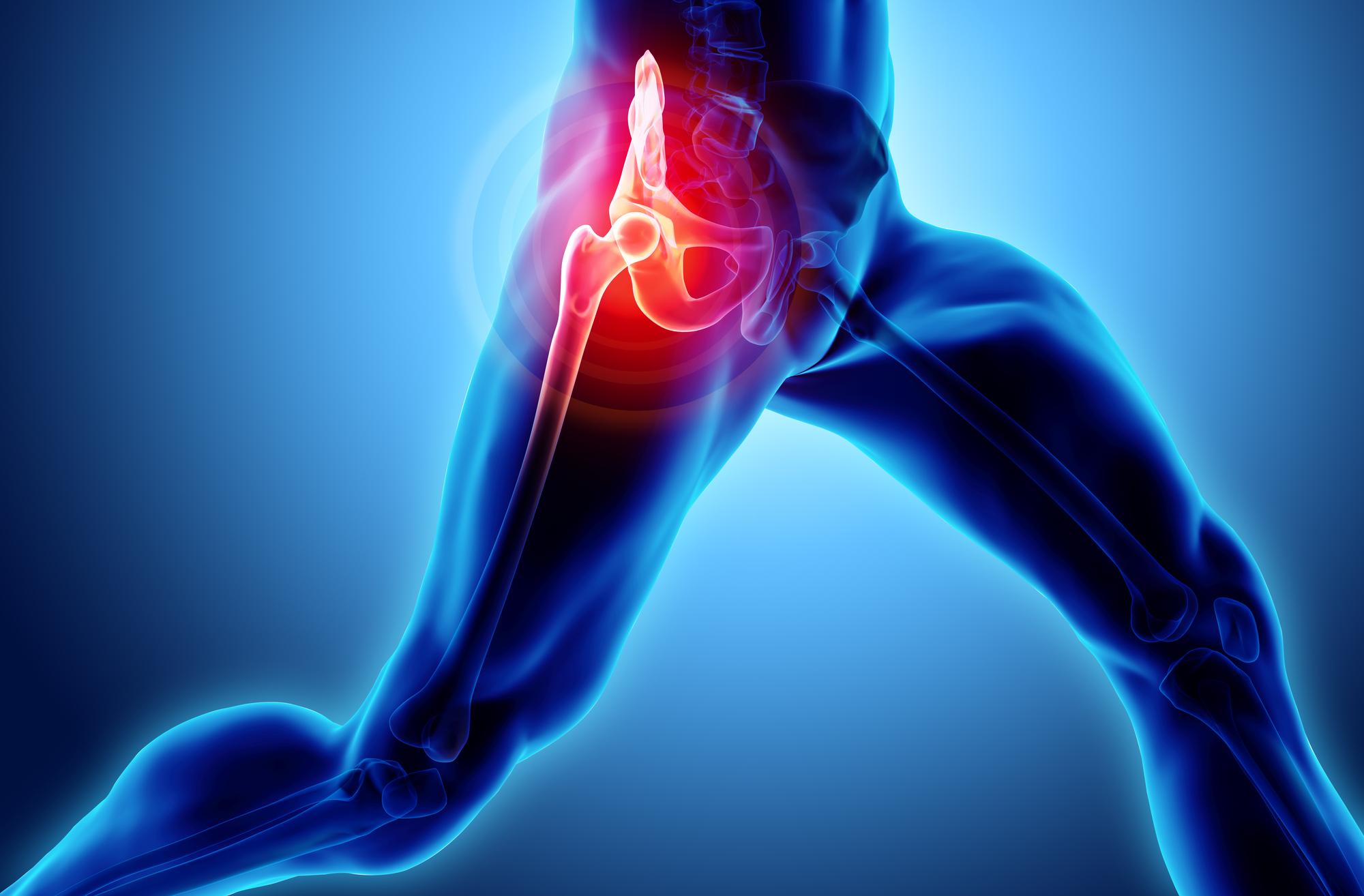 Causas dolor cadera