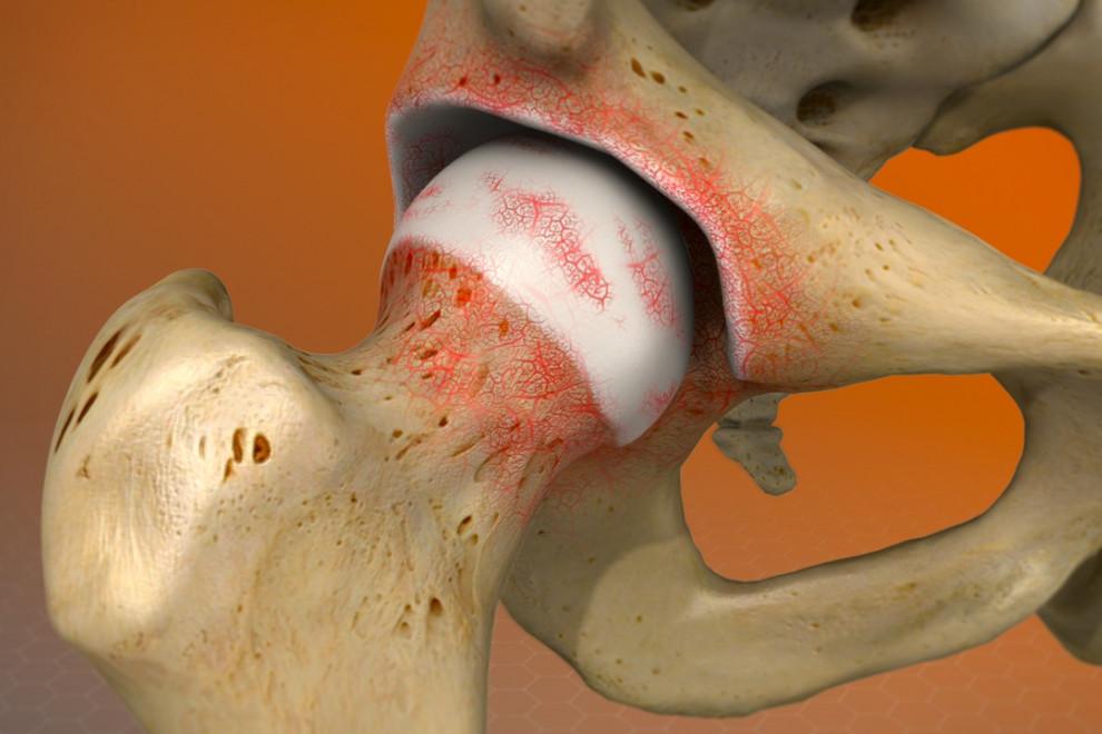 Tipos artritis