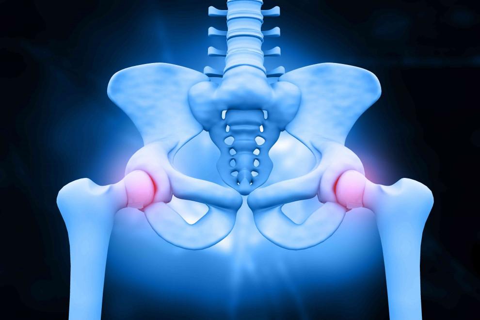 Diferencias pelvis cadera