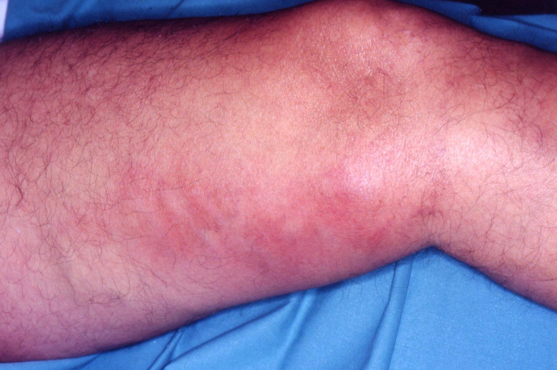 Síntomas flebitis