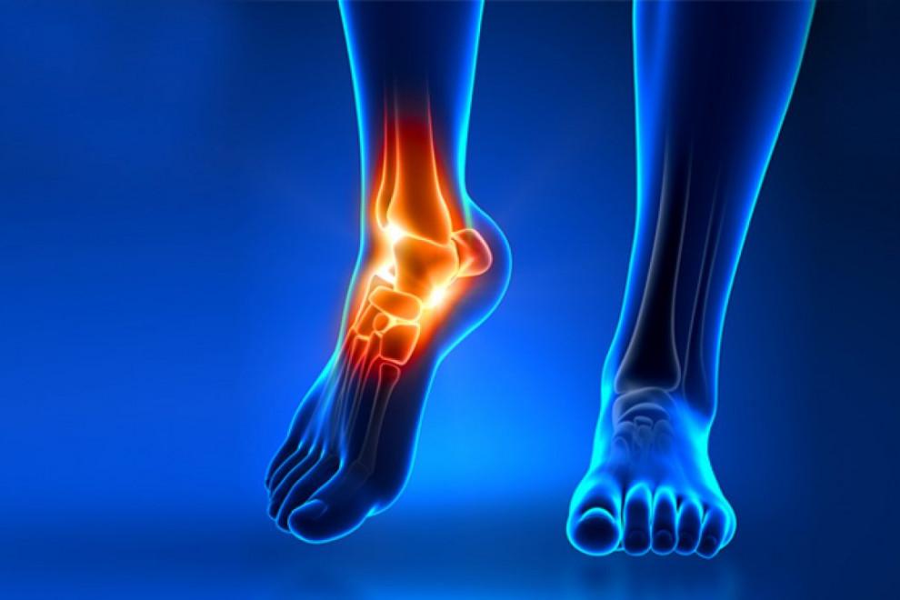 Lesiones tobillo pie
