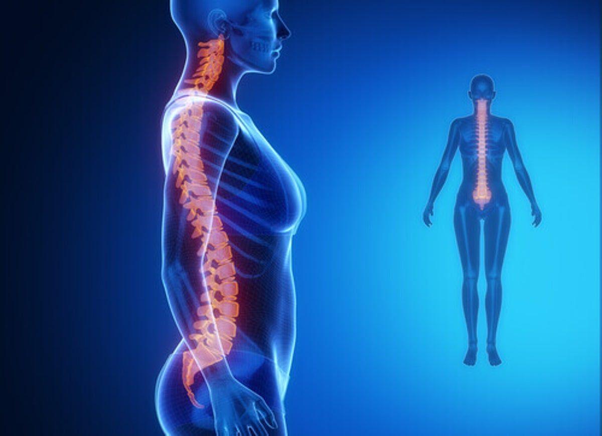 Artrosis columna