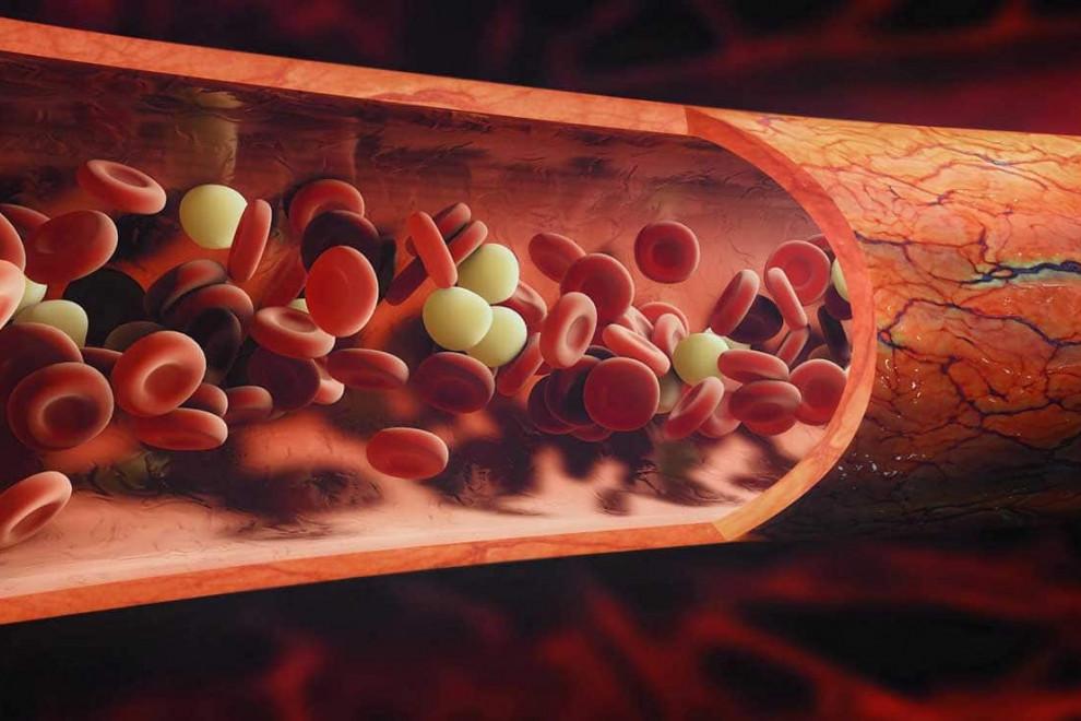 Partes sangre