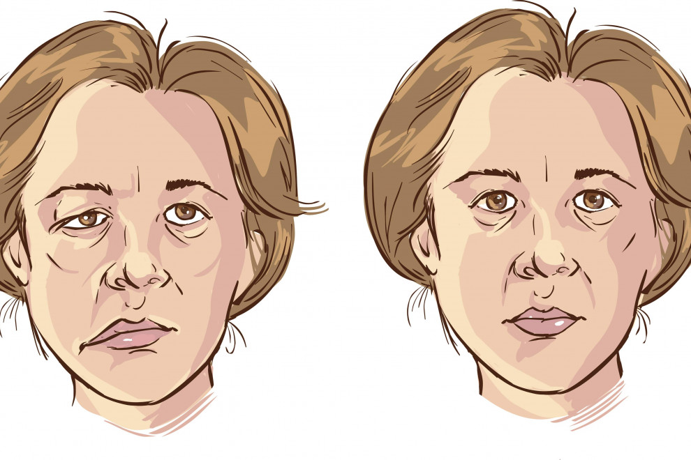Diferencias parálisis facial central periférica