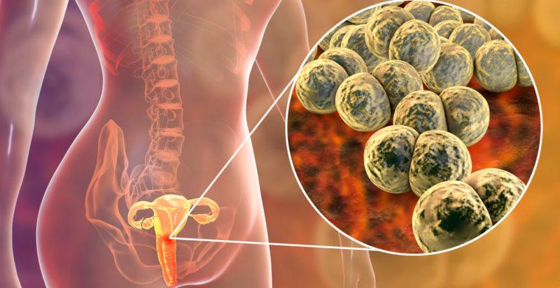 Gonorrea síntomas